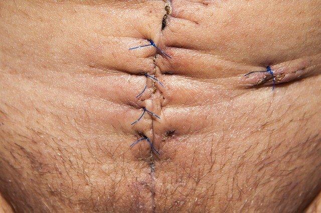 http://bencalder.co.uk/assets/gallery/services-36/body-scar-mstr_thumb.jpg